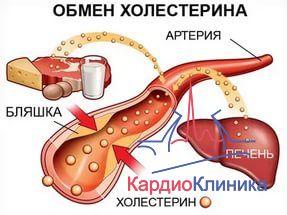 Холестерин: что необходимо знать