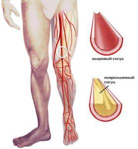 Центр лечения критической ишемии нижних конечностей