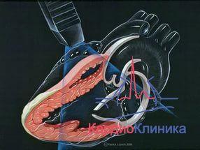 В КардиоКлинике начался цикл лекций усовершенствования врачей по эхокардиографии