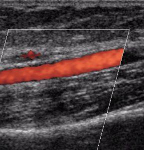 Дуплексное сканирование вен
