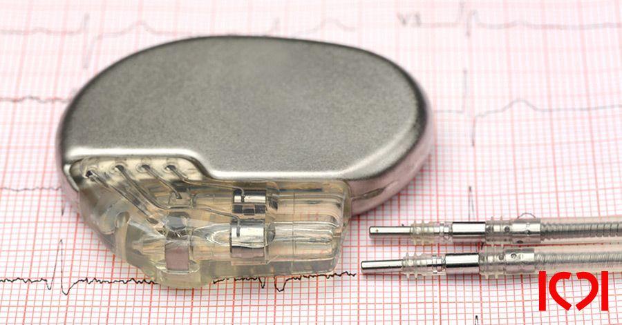 Имплантация МРТ - совместимого кардиостимулятора