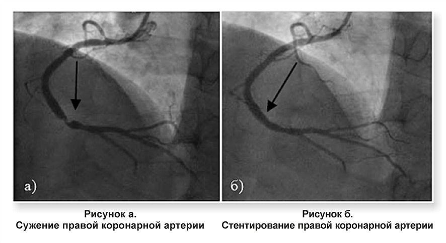 Коронарная ангиопластика и стентирование коронарных артерий
