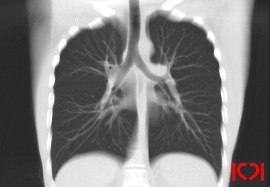КТ-лёгких во фронтальной плоскости