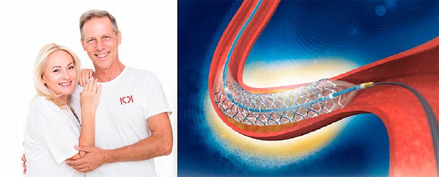 Перфоратор уайли для обызвествлившихся артерий